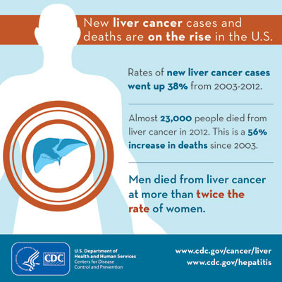 liver cancer on rise 400
